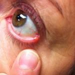 Stye aka Hordeolum on outside bottom eye lid